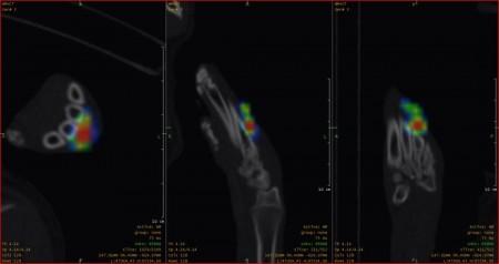 Kutya ujjízületének SPECT/CT vizsgálata